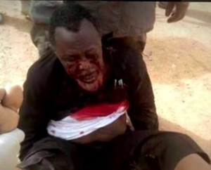 Ibrahim Yaqoub El Zakzaky is pictured bleeding as a result of the clash between the Nigerian army and his followers, December 2015
